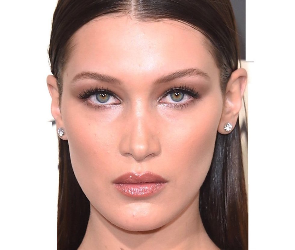 Bella Hadid Surgery